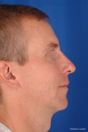 Rhinoplasty For Men: Patient 1 - After Image 3