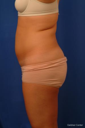 Liposuction: Patient 12 - Before and After Image 5