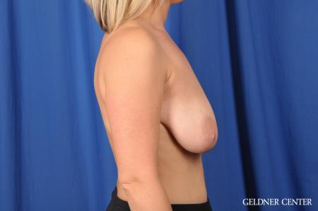 Breast Augmentation: Patient 142 - Before Image 2