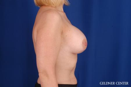 Breast Augmentation: Patient 164 - After Image 3