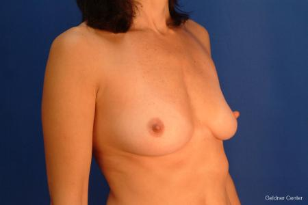 Breast Augmentation Streeterville, Chicago 2437 - Before Image 3