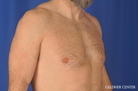 Gynecomastia: Patient 9 - Before Image 3