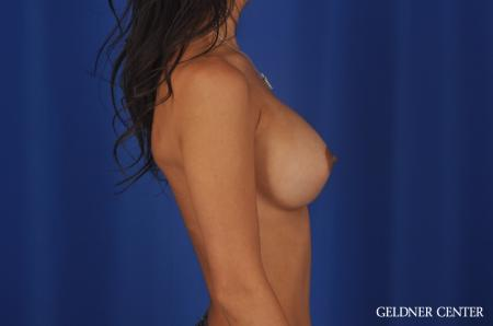 Breast Augmentation Lake Shore Dr, Chicago 5545 -  After Image 3
