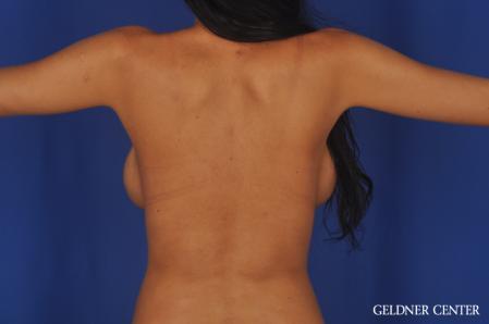 Complex Breast Augmentation: Patient 38 - After Image 5