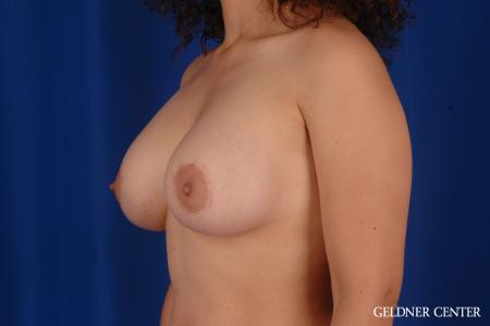 Breast Augmentation: Patient 160 - After Image 4