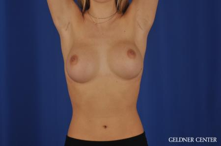 Breast Augmentation Streeterville, Chicago 4294 - Before and After Image 5