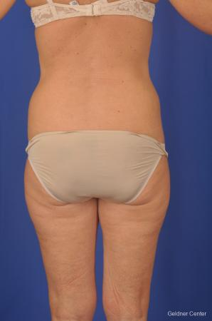 Lipoabdominoplasty: Patient 2 - Before and After Image 4
