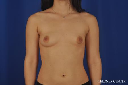 Chicago Breast Lift 5473 - Before Image 1
