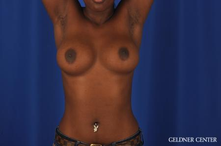 Breast Augmentation Hinsdale, Chicago 4001 - Before and After Image 5