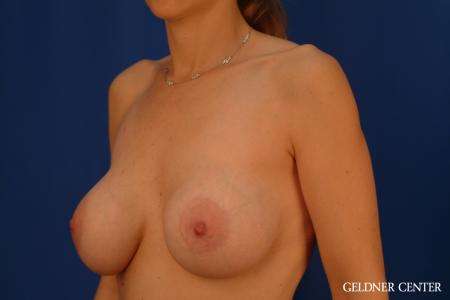 Complex Breast Augmentation: Patient 39 - Before and After Image 4