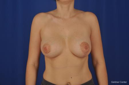 Chicago Complex Breast Augmentation 2306 -  After Image 1