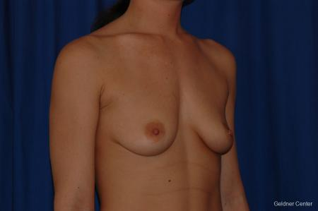 Breast Augmentation Streeterville, Chicago 2071 - Before Image 3