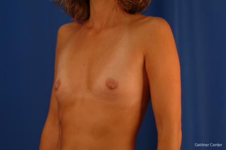 Chicago Breast Augmentation 2442 - Before and After Image 4