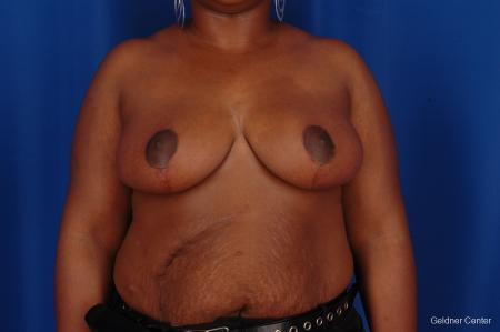 Breast Reduction Hinsdale, Chicago 2334 - After Image