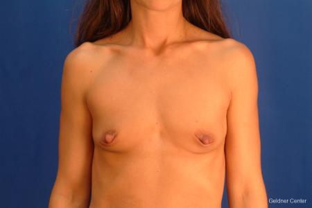 Chicago Breast Augmentation 2521 - Before Image 1