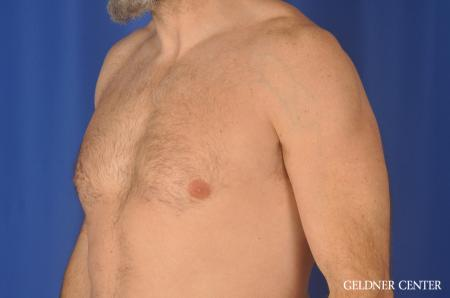Gynecomastia: Patient 9 - Before and After Image 4
