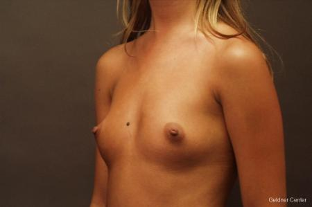 Breast Augmentation Lake Shore Dr, Chicago 2533 - Before Image 4