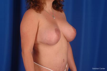 Complex Breast Augmentation Hinsdale, Chicago 2300 -  After Image 2