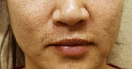 SkinPen®: Patient 5 - Before 1