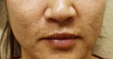 SkinPen®: Patient 5 - Before