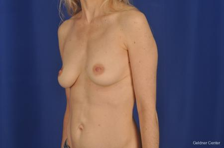 Breast Augmentation Lake Shore Dr, Chicago 2309 - Before and After Image 3
