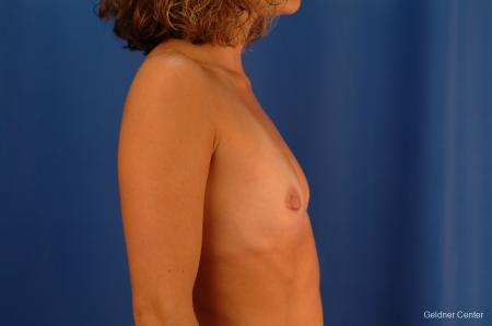 Chicago Breast Augmentation 2442 - Before Image 2