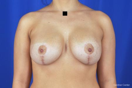 Chicago Breast Lift 2059 -  After Image 1