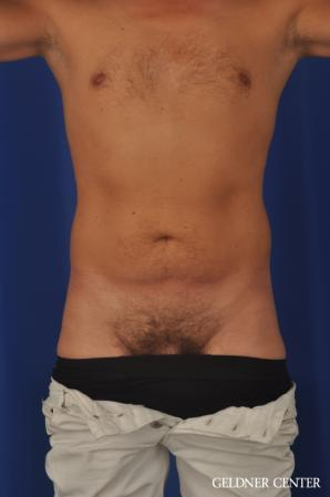 Liposuction For Men: Patient 12 - Before Image 1
