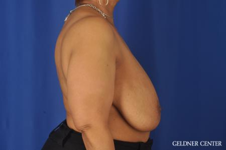 Breast Reduction: Patient 25 - Before Image 3