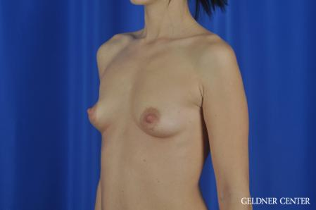 Breast Augmentation: Patient 166 - Before and After Image 4