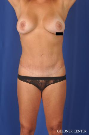 Abdominoplasty: Patient 5 - After Image 1