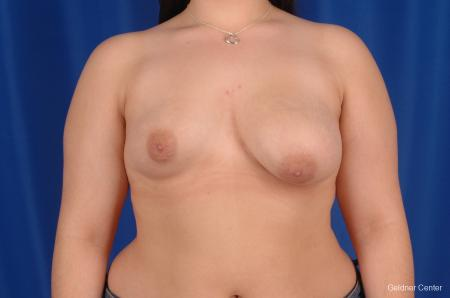 Chicago Complex Breast Augmentation 2616 - Before Image 1