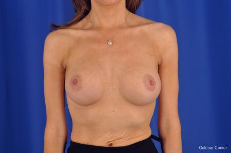 Breast Lift Chicago 2296 -  After Image 1