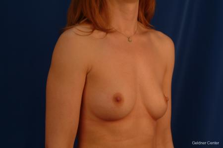 Chicago Breast Augmentation 2634 - Before Image 3