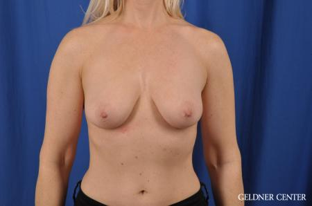 Breast Augmentation: Patient 83 - Before Image 1