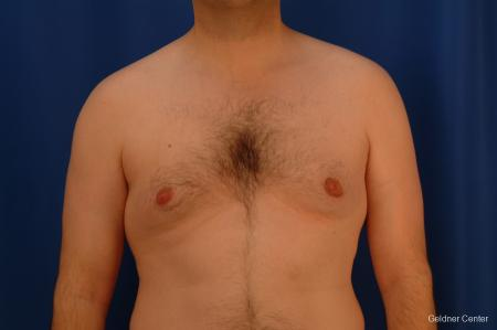 Gynecomastia: Patient 4 - Before Image 1