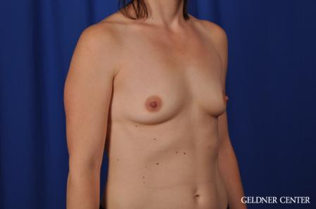 Breast Augmentation: Patient 170 - Before Image 2