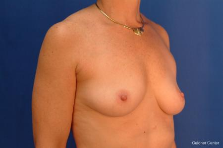 Breast Augmentation Hinsdale, Chicago 2541 - Before Image 3