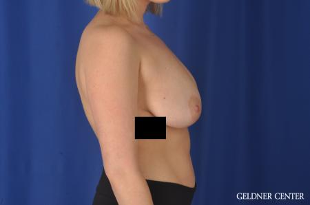 Breast Augmentation: Patient 147 - Before Image 3