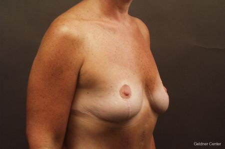 Chicago Breast Augmentation 2524 - Before Image 2