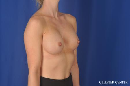 Breast Augmentation Hinsdale, Chicago 11860 -  After Image 2