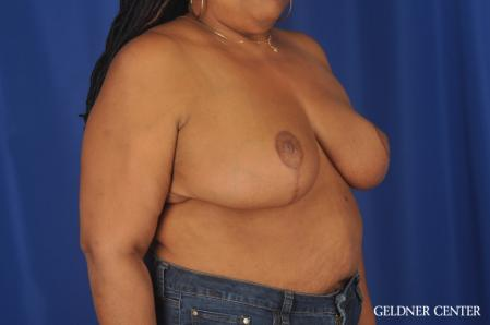Breast Reduction: Patient 22 - After Image 3