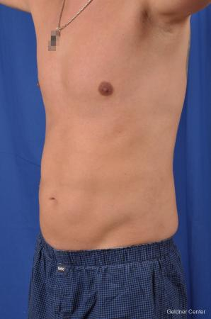 Liposuction For Men: Patient 5 - After Image 5