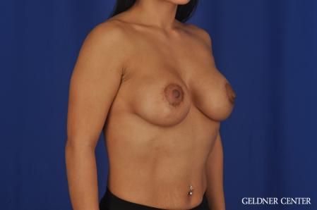 Breast Augmentation: Patient 185 - After Image 2