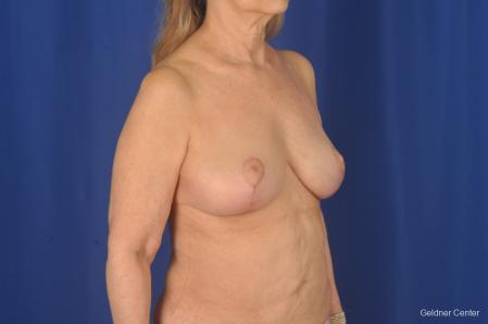 Complex Breast Augmentation: Patient 2 - After Image 2