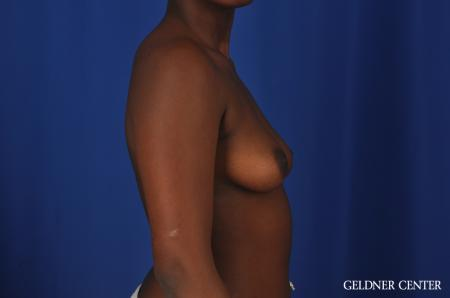 Breast Augmentation Hinsdale, Chicago 4001 - Before Image 2