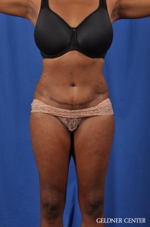 Liposuction: Patient 40 - After Image 1