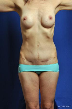 Tummy Tuck: Patient 6 - After Image 1