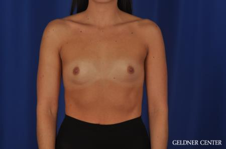 Breast Augmentation Hinsdale, 4290 - Before Image 1