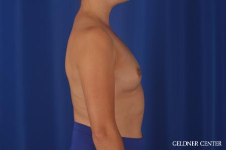Breast Augmentation: Patient 180 - Before Image 3
